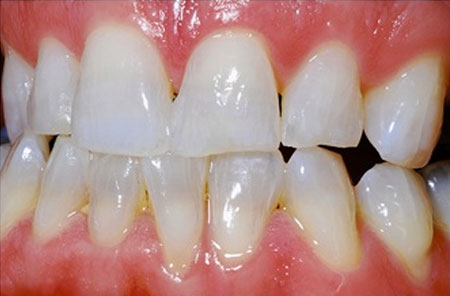 Whitening: After